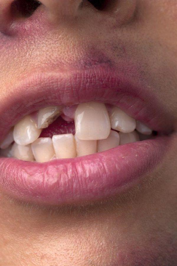 tandlaege, bente canter, tandskade, akuttid