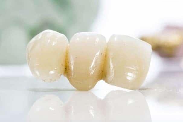 tandlaege, bente canter, broer, implantater
