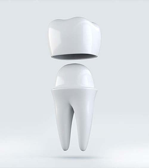 tandlaege, bente canter, kroner, facader