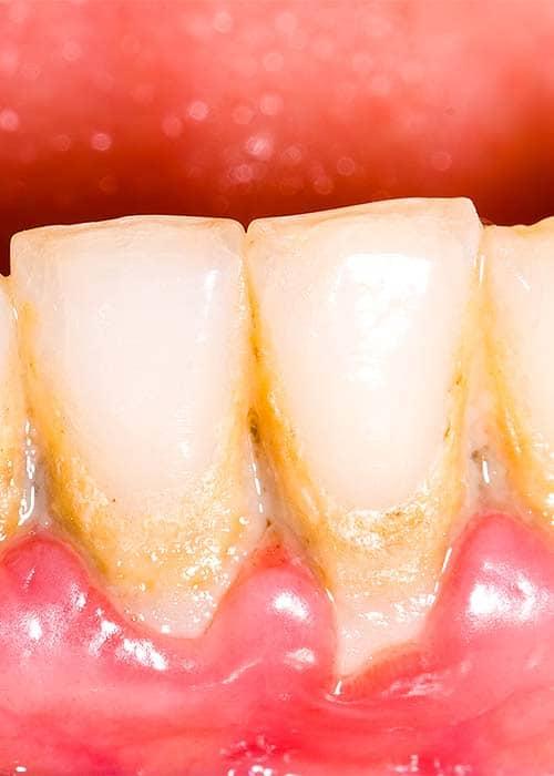 tandlaege, bente canter, paradoentose