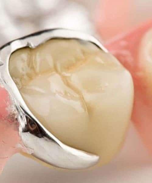 tandlaege, bente canter, tandproteser