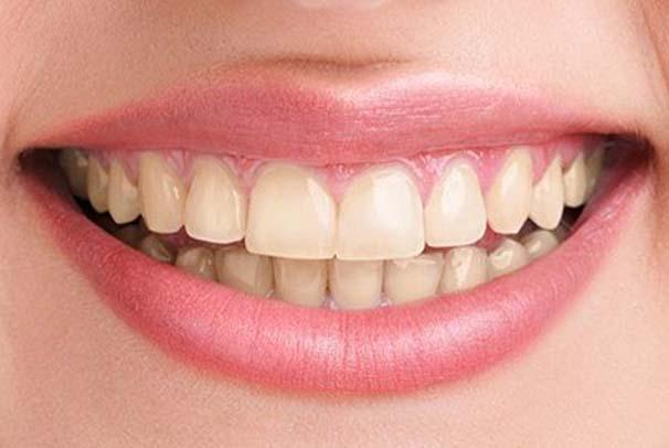 tandlaege, bente canter, tandblegning