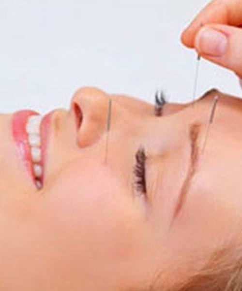 tandlaege, bente canter, akupunktur